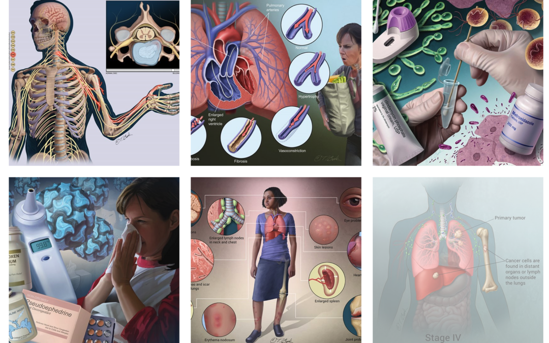 Art and Design's Todd Buck featured as one of 16 medical illustrators doing groundbreaking work
