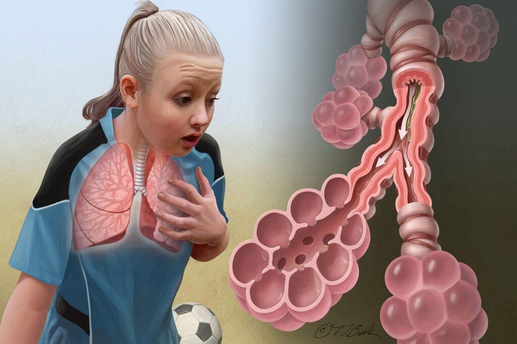 Asthma - Todd Buck